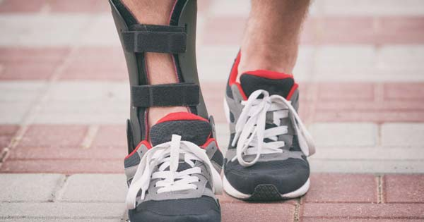 Buyers Guide Shoes for Achilles Tendonitis